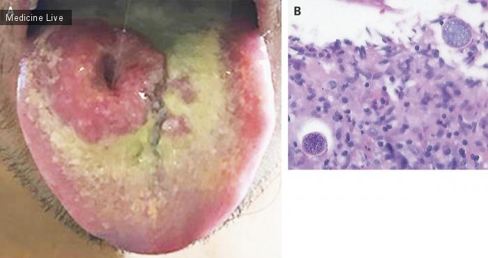 Интересный случай: Диссеминированный Кокцидиоидомикоз