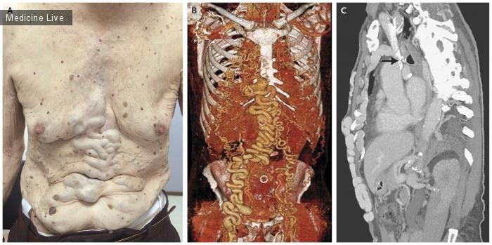Интересный случай: Хроническая окклюзия верхней полой вены