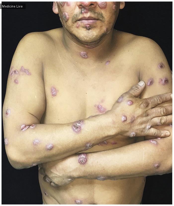 Интересный случай: Диссеминированный кожный бластомикоз