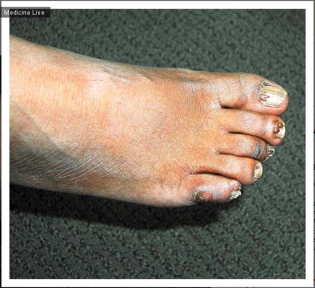 Интересный случай: Околоногтевые фибромы. Туберозный склероз.