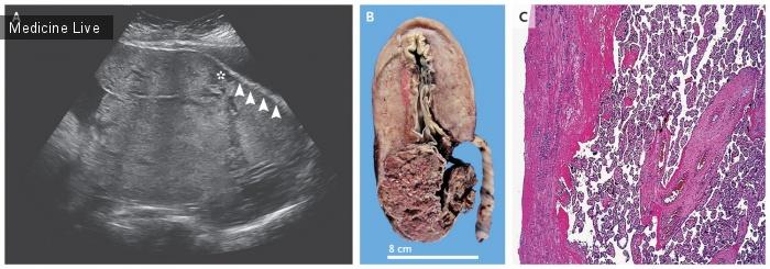 Интересный случай: Врастание плаценты