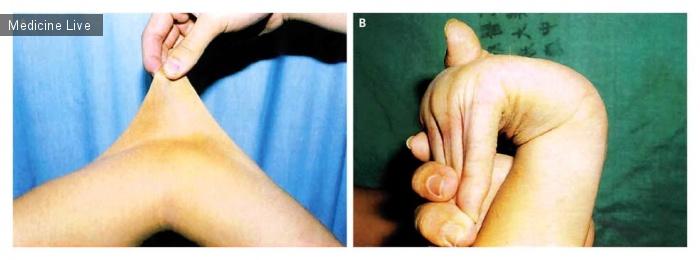Интересный случай: Синдром Элерса-Данлоса