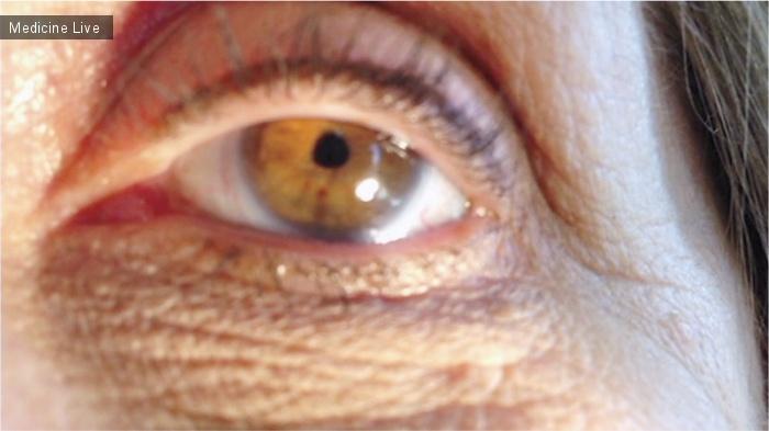 Интересный случай: Иридодонез при синдроме Марфана