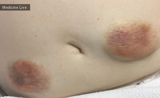 Интересный случай: Инсулино-опосредованная липогипертрофия