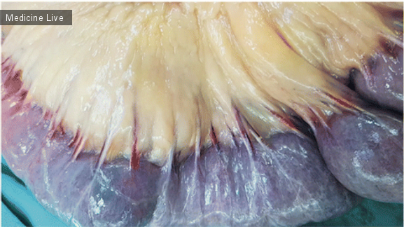 Интересный случай: Тромбоз вен в ишемизированном кишечнике