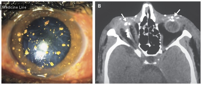 Интересный случай: Травма глаза, полученная при запуске фейерверка
