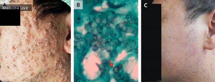 Интересный случай: Инфекция Talaromyces marneffei