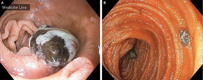 Интересный случай: Метастатическая меланома двенадцатиперстной кишки