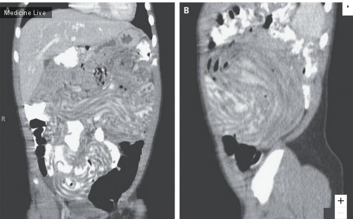 Интересный случай: Трубчатые затемнения желудочно-кишечного тракта