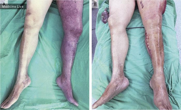 Интересный случай: Синяя флегмазия с компартмент синдромом