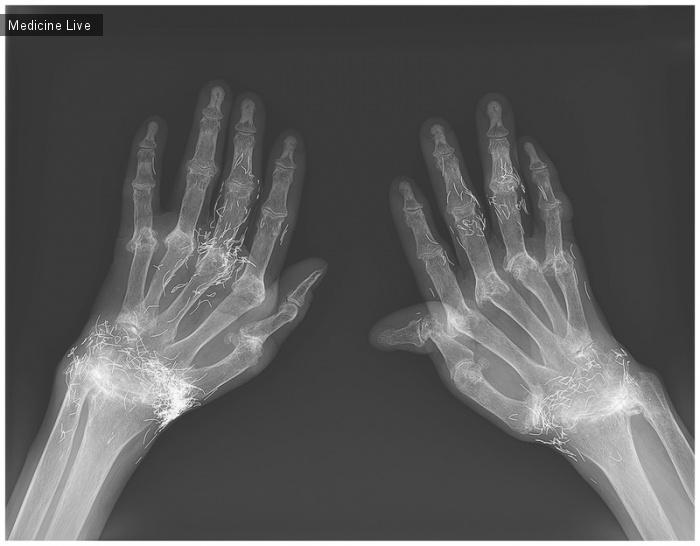 Интересный случай: Вживление золотых нитей при ревматоидном артрите