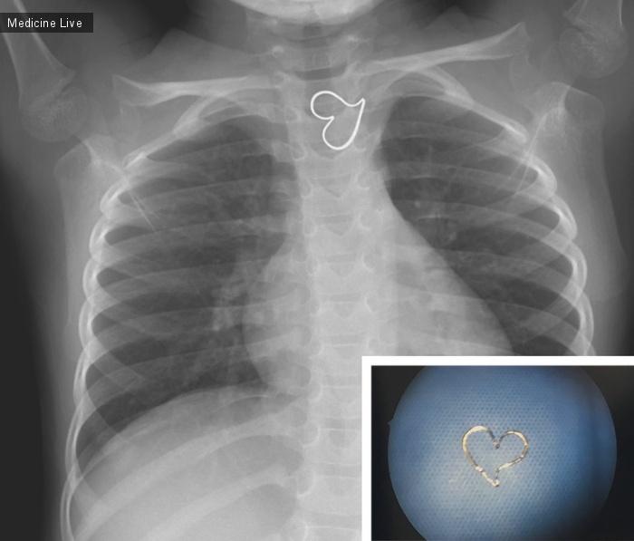 Интересный случай: Золотое сердце