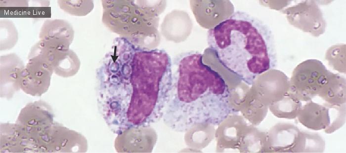 Интересный случай: Диссеминированный гистоплазмоз