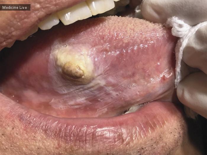Интересный случай: Веретенообразная саркома языка