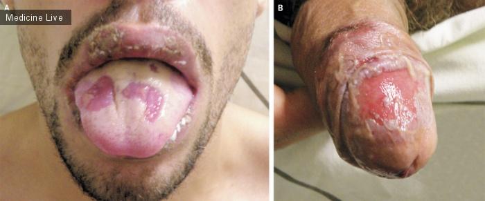 Интересный случай: Язвы полости рта и половых органов при болезни Бехчета