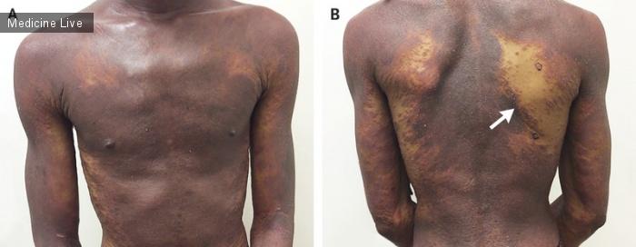 Интересный случай: Эритродермический псориаз и ВИЧ-инфекция