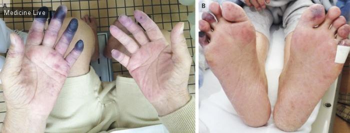 Интересный случай: Некроз пальцев рук и ног