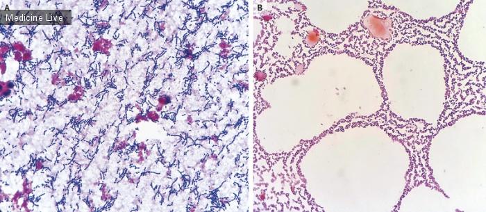 Интересный случай: Пневмококковая бактериемия и менингит