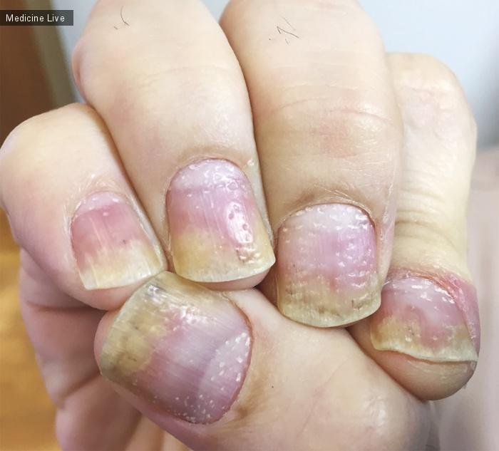 Интересный случай: Изъязвление ногтей при псориазе