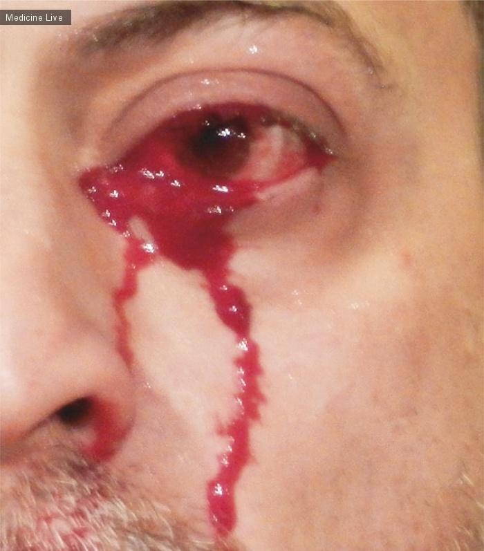 Интересный случай: Гемолакрия - Плачущая Кровь