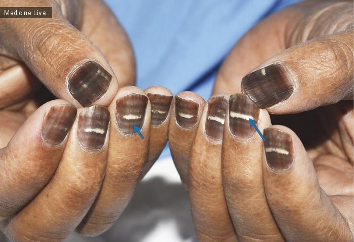 Интересный случай: Изменение ногтей во время химиотерапии