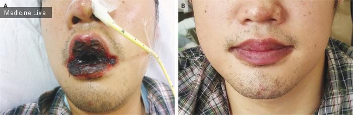 Интересный случай: Mycoplasma pneumoniae - ассоциированный мукозит
