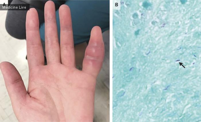Интересный случай: Туберкулез пальца