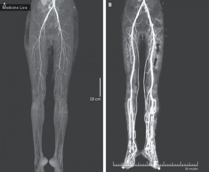 Интересный случай: Жгучая боль в ногах