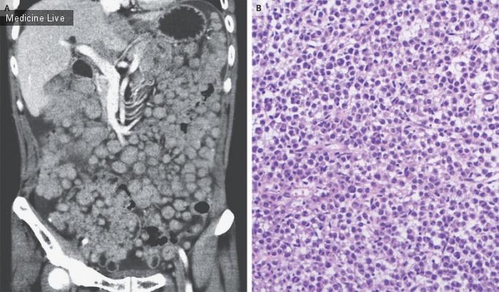 Интересный случай: Метастатическая светлоклеточная саркома
