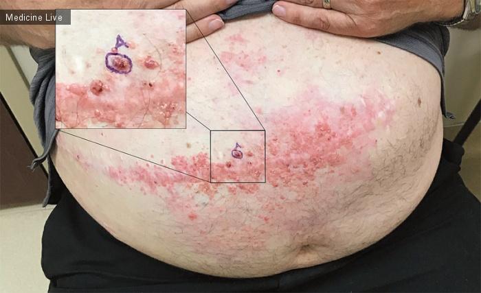 Интересный случай: Метастазы рака толстой кишки в хирургическом рубце