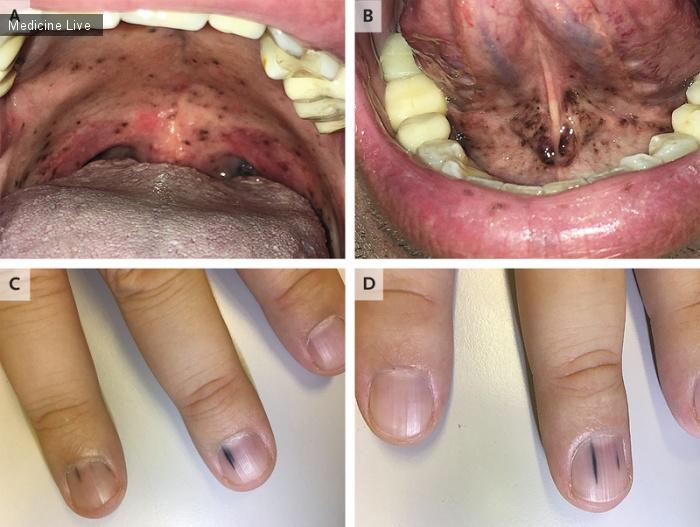 Интересный случай: Метастазы меланомы эруптивной слизистой оболочки и меланомы ногтей