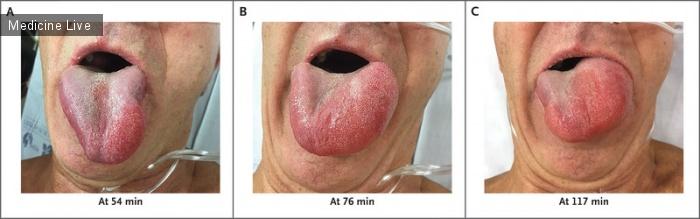 Интересный случай: Ангионевротический отек после инфузии ТПА