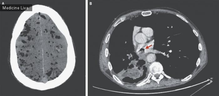Интересный случай: Пневмоцефалия вследствие бронхо-предсердного свища