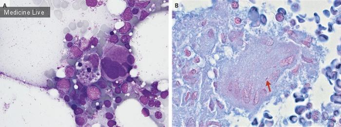 Интересный случай: Гемофагоцитарный лимфогистиоцитоз, ассоциированный с диссеминированным туберкулезом