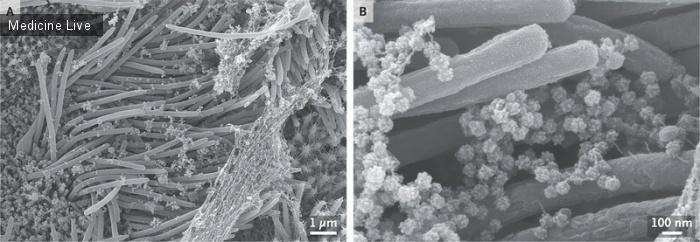 Интересный случай: SARS-CoV-2 Инфекция клеток дыхательных путей