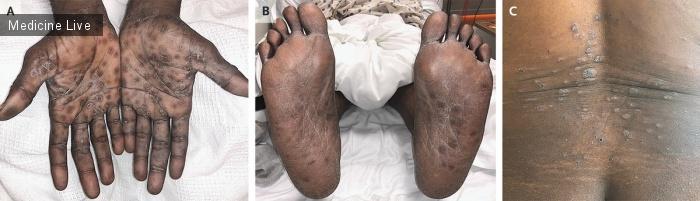 Интересный случай: Вторичный сифилис