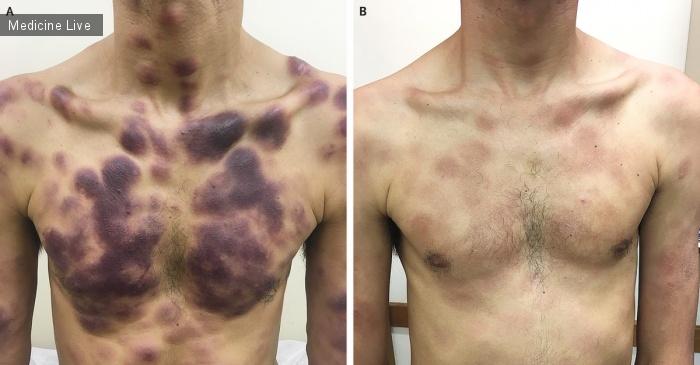 Интересный случай: Бластное плазмоцитоидное новообразование дендритных клеток