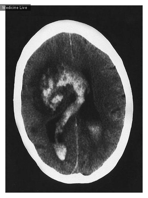Интересный случай: Геморрагическая трансформация церебрального инфаркта