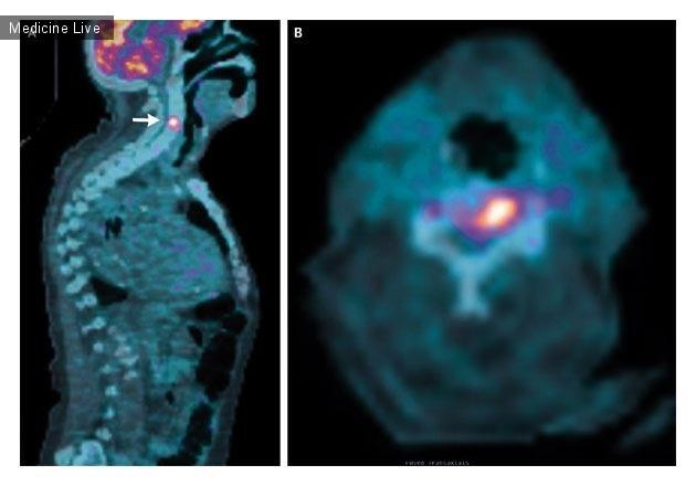 Интересный случай: Острый позвоночный остеомиелит