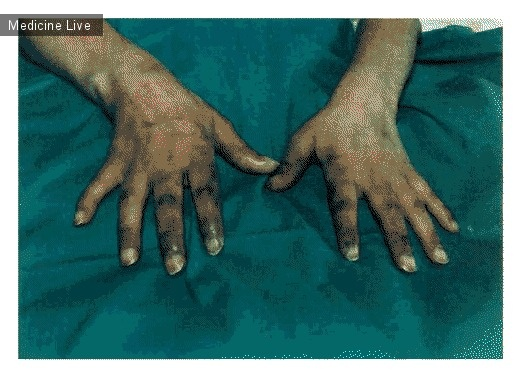 Интересный случай: Акральная эритема, вызванная химиотерапией