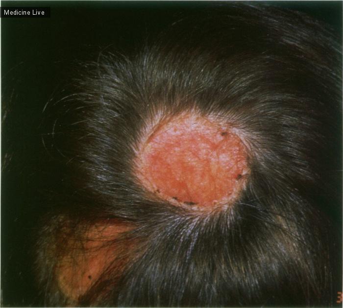 Интересный случай: ВИЧ-ассоциированная инфекция, вызванная вирусом простого герпеса
