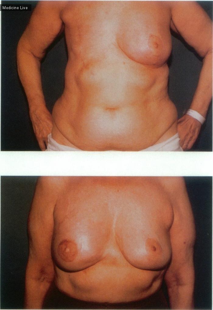 Интересный случай: Реконструкция груди