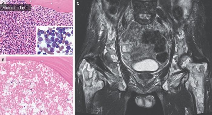 Интересный случай: Некроз костного мозга при остром монобластном лейкозе