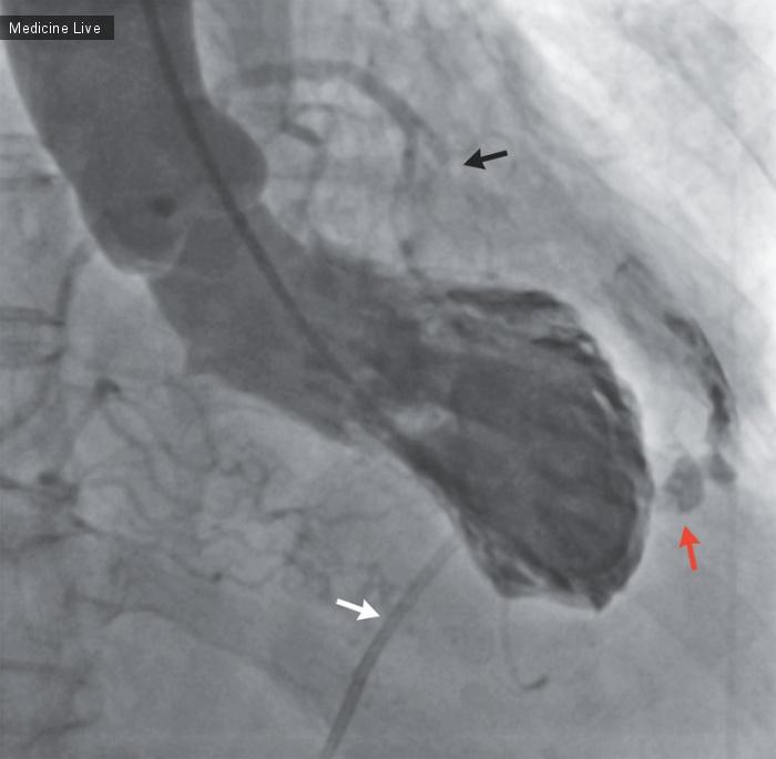 Интересный случай: Разрыв левого желудочка