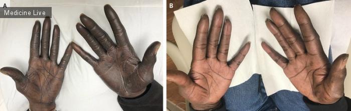 Интересный случай: Гиперпигментация, вызванная фторурацилом