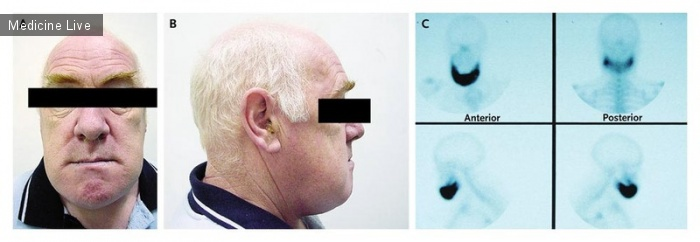 Интересный случай: Болезнь Педжета нижней челюсти