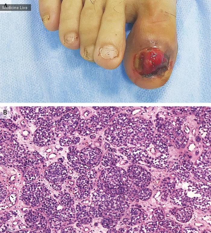 Интересный случай: Кровоточащий палец