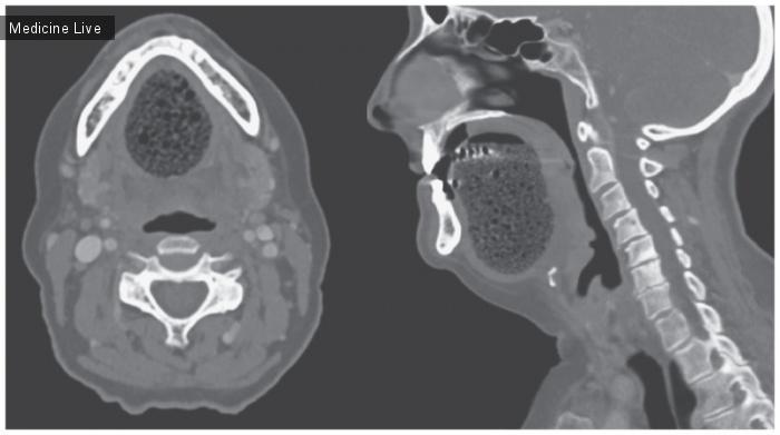 Интересный случай: Подъязычная эпидермоидная киста