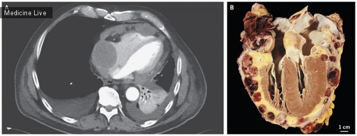 Интересный случай: Ангиосаркома с поражением сердца