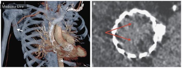 Интересный случай: Окклюзия подмышечной артерии после TAVR
